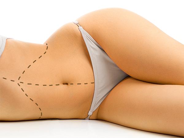 Liposuccion ou plastie abdominale - Docteur Mamlouk