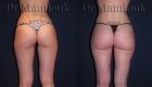 Lipofilling des fesses par injection de 500 ml chez une femme mesurant 1,65m pour 52 Kg réalisé par le Docteur Mamlouk.