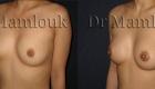 Augmentation mammaire par voie aréolaire de prothèses rondes à profil modéré de 210 cc en position pré-musculaire  - Docteur Mamlouk