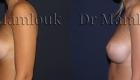 Augmentation mammaire par voie sous mammaire de prothèses rondes à profil modéré de 260 cc en position pré-musculaire - Docteur Mamlouk