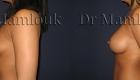 Augmentation mammaire par pose de prothèses à profil modéré de 310 gr à droite et 275 gr à gauche par voie axillaire en position rétro-musculaire.Augmentation mammaire par pose de prothèses à profil modéré de 310 gr à droite et 275 gr à gauche par voie axillaire en position rétro-musculaire.