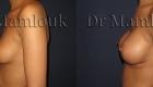 Pose de prothèses de 300 gr à profil modéré par voie axillaire en position rétro-musculaire avec la technique de Dual Plan.