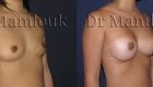 Augmentation mammaire par pose de prothèses rondes de 300 gr à profil modéré par voie aréolaire avec la technique de Dual Plan.