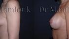 Augmentation mammaire par voie aréolaire, prothèses de 350 gr en position rétro-musculaire en utilisant la technique de Dual Plan.
