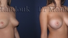 Pose de prothèses de prothèses rondes de 350 cc à profil modéré par voie sous mammaire, en position pré-musculaire.