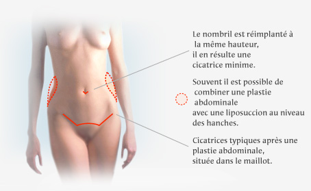 douleur unilaterale abdominale grossesse - condexatedenbaycom