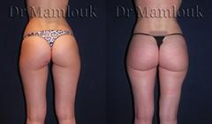 Lipofilling des fesses Docteur Mamlouk Chirurgien esthetique plastique Paris